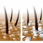 Dandruff hair problem. — Stock Vector #65090195