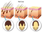Hair loss process — Stock Vector