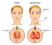 Anatomy of Thyroid gland, Epiglottis, Trachea. — Stock Vector