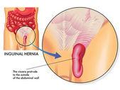 Intestines bulging towards groin. — Stock Vector