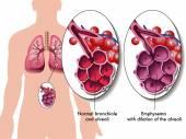 Pulmonary emphysema — Stock Vector