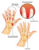 Psoriatic arthritis — Stock Vector