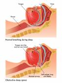 Obstructive sleep apnea — Stock Vector