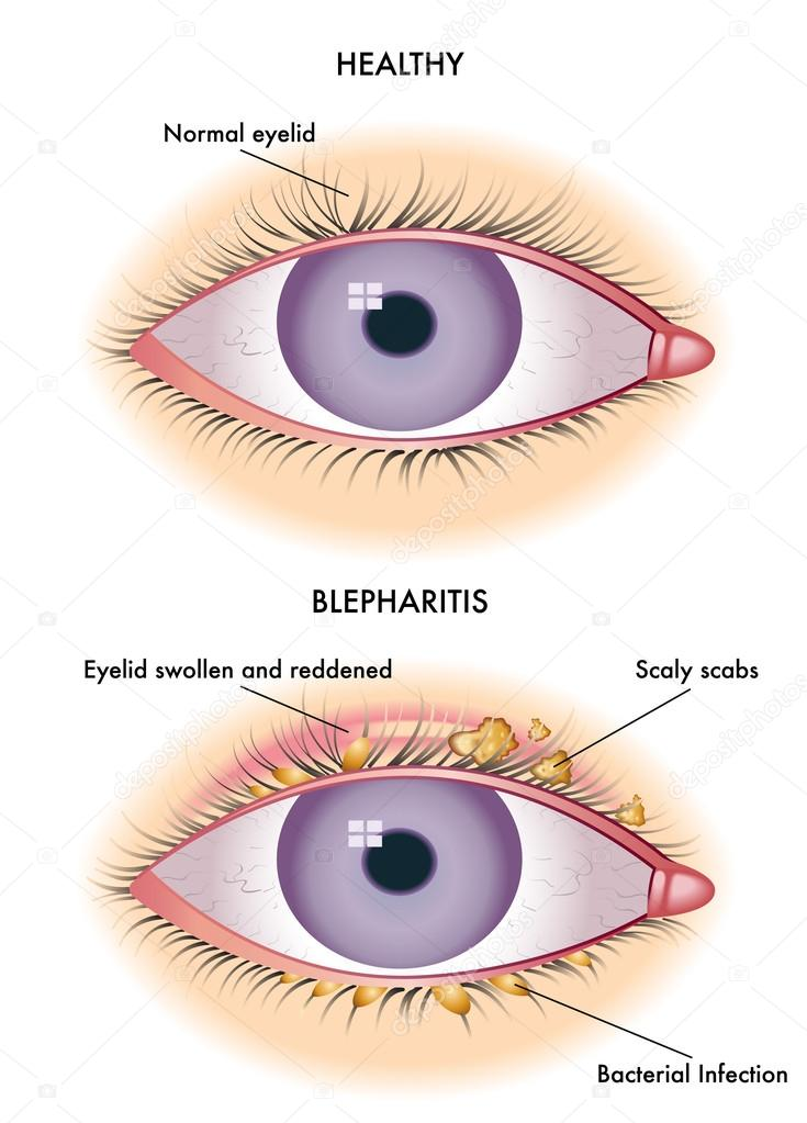 Colorful blepharitis scheme stock vector 169 rob3000 73928487