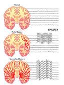 Human epilepsy scheme — Stock Vector