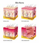 Medical illustration of the formation of skin burns — Stock Vector