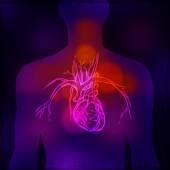 Human Heart X-ray — Stock Vector