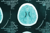 Images from a computerized tomography of the brain — Stock Photo