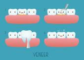 Veneer tooth of dental — Stock Vector