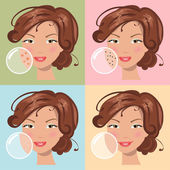 Different skin problems. Vector illustration — Stock Vector