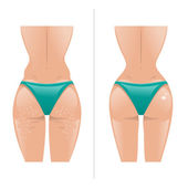 Vector illustration of cellulite and healthy skin — Stock Vector