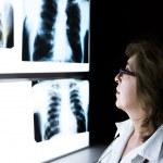 Female doctor checking xray image — Stock Photo #63710857