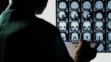 Examining scull brain X-ray scan — Stock Video