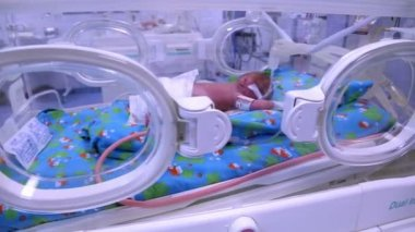 Little baby in intensive care. Neonatal Medicine. — Stock Video