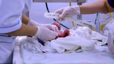 Newborn on the operating table. — Stock Video
