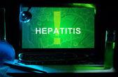 Hepatitis — Foto de Stock