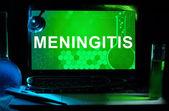 Meningite — Foto Stock