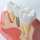 Dental implant — Stock Photo