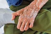 癩病の左の手 — ストック写真