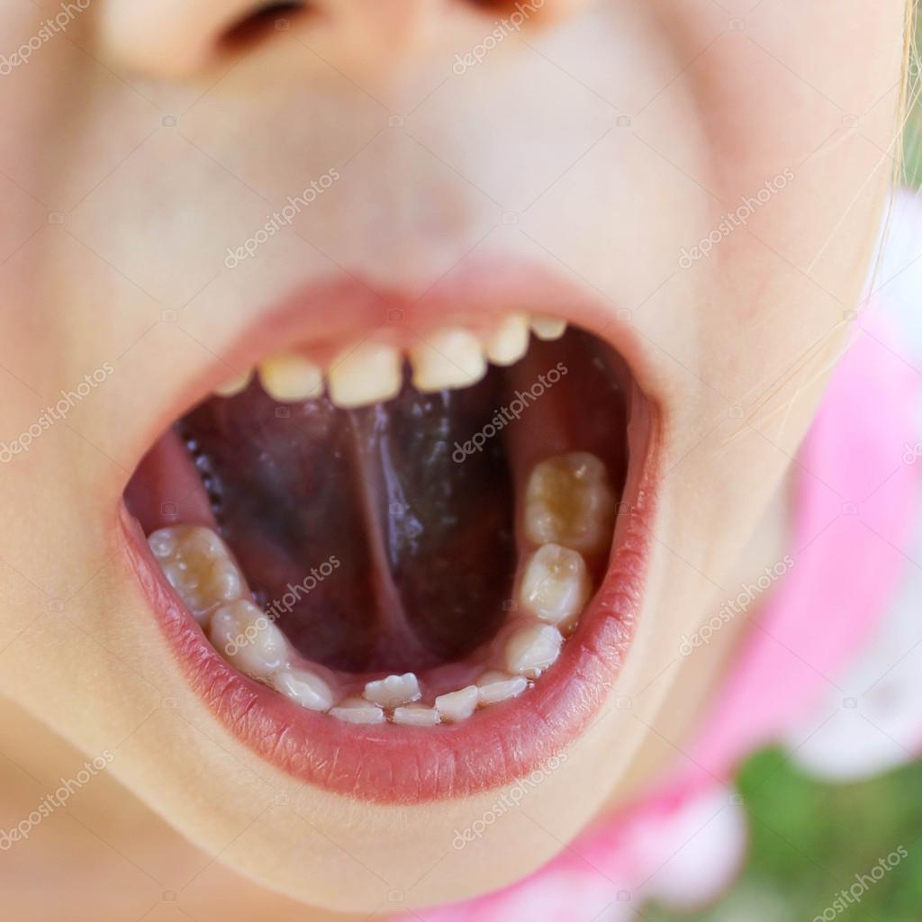 Рот маленькой девочки 4 фотография