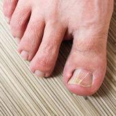Damaged toenail — Stock Photo