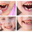 A collage of the child has lost the baby tooth.  At 6 years old child loose tooth. The girl is holding the tooth in his hand. New molar tooth growing. — Stock Photo #73095517