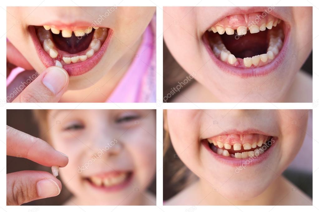 Если болит зуб: что делать в домашних условиях