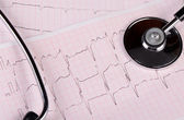 The tape with the cardiogram of a man — Stock Photo