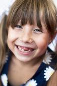 Retrato de una niña alegre sin dientes en primer plano en un día de verano — Foto de Stock
