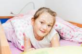 Little girl of 7 years old with chicken pox resting in a bed — Stock Photo