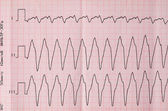 Tape ECG with paroxysm correct form of atrial flutter  — Stock Photo