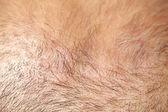 Thin hair — Stock Photo