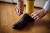 The man wears shoes. Yellow socks. — Stock Photo