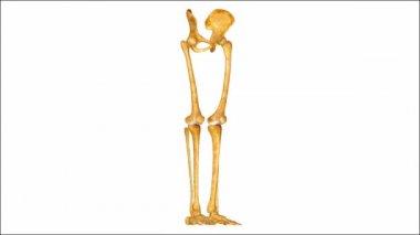 Skeleton Legs — Stock Video
