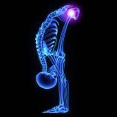 Articulación de la cadera — Foto de Stock