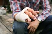 Splint broken bone  hand Injured — Stock Photo