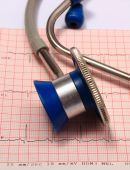 Stethoscope with electrocardiogram graph report — Stock Photo