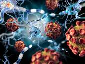 High quality 3d render of viruses attacking nerve cells, concept for Neurologic Diseases, tumors and brain surgery. — Stock Photo