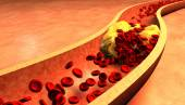 Clogged Artery with platelets and cholesterol plaque — Stock Photo