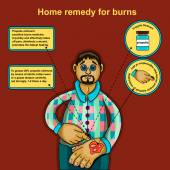 Home remedy for burns — Stock Vector
