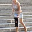 Blonde woman with crutches — Stock Photo #53934149