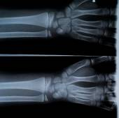 X Ray of two hands and forearm — Stock Photo
