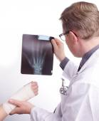 Doctor exam one X-ray picture of sprained Hand — Stock Photo