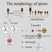 Infographics sperm morphology. — Stock Vector