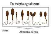 The morphology of the sperm. Normal and abnormal sperm structure — Stock Vector