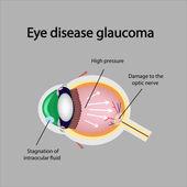 Glaucomatous eye. Violations causing glaucoma — Stock Vector