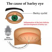 Diseases of the eye barley. Causes of barley. Demodex mite infestations. Inflammation volosyannoy bulbs — Stock Vector
