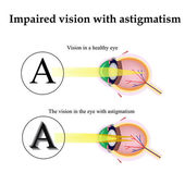 Astigmatism. As the eye can see with astigmatism. Impaired vision — Vector de stock
