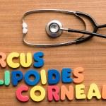 Arcus lipoides corneae — Stock Photo #74244683
