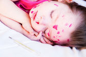 The girl is suffering from chicken pox — Stock Photo